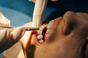 a person getting dental braces tx