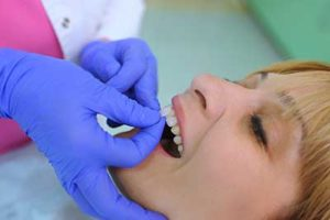 a patient receiving dental veneers tx