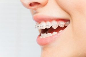 a woman smiling showing options for clear braces northside tx