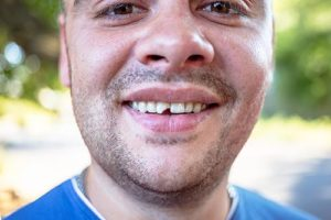 a man in need of dental bonding for chipped teeth northside tx