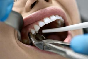 woman being treated for gum recession