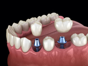 diagram shows the process of implementing dental crowns and bridges
